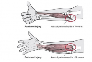 back hand injury
